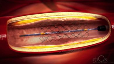 Stent implantation 3d medical animation