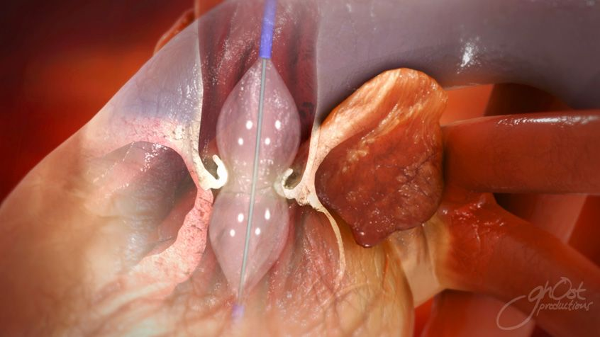 aortic valve treatment