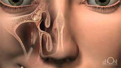 maxillary sinus access